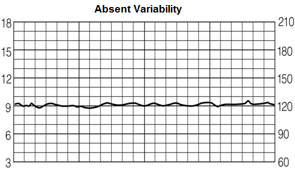 Absent variability