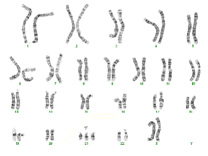 Down's syndrome (trisomy 21) karyotype