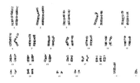 Karyotype Profile Of A Person S Chromosomes