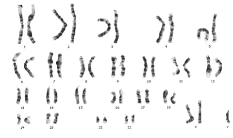 which sex chromosomes are present in a person with klinefelter syndrome in Tamworth
