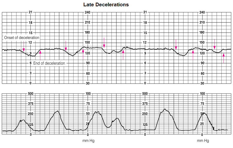 Late Decelerations Explained