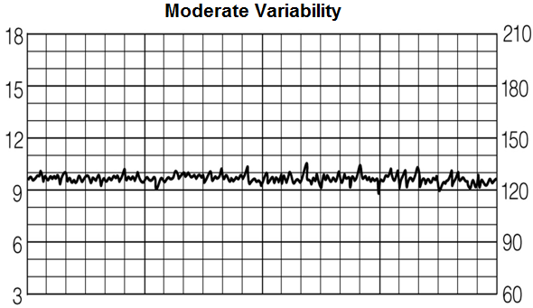 Moderate variability