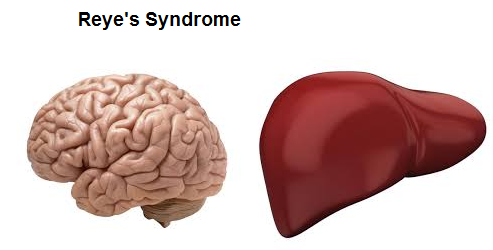 Image result for Reye's syndrome