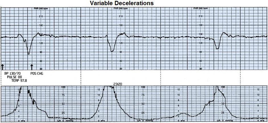 how to find the deceleration on a graph